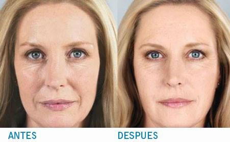 medicina antiaging remodelacion facial francisca signes